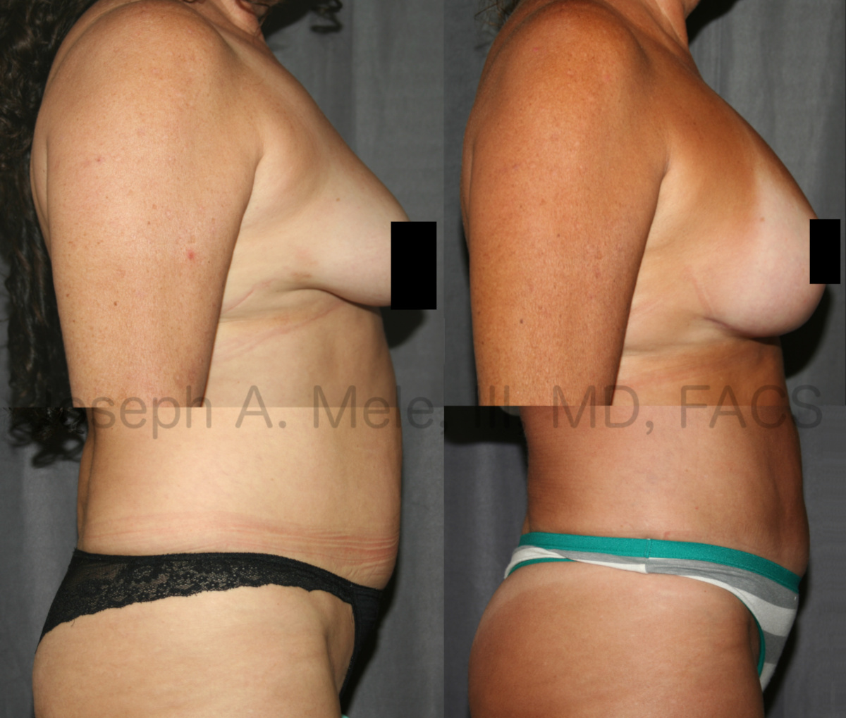 Mommy Makeover with breast augmentation and tummy tuck before and after pictures