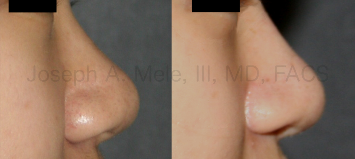 Dorsal Nasal Implant - Nasal Augmentation before and after pictures