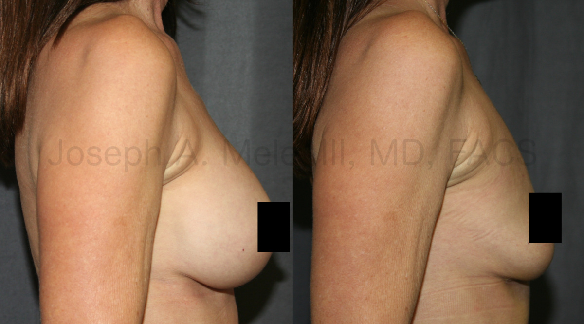 Breast Implant Removal Results - One month after surgery
