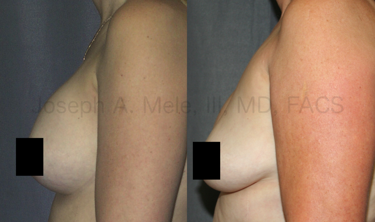 Breast Implant Removal Results - One year after surgery