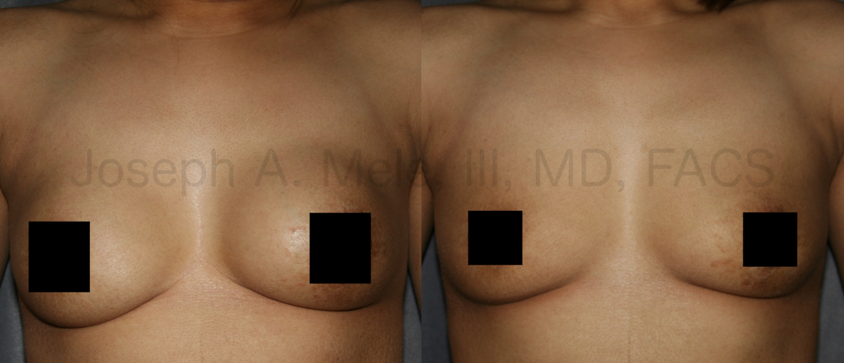 Breast Implant Removal Results - for Capsular Contracture