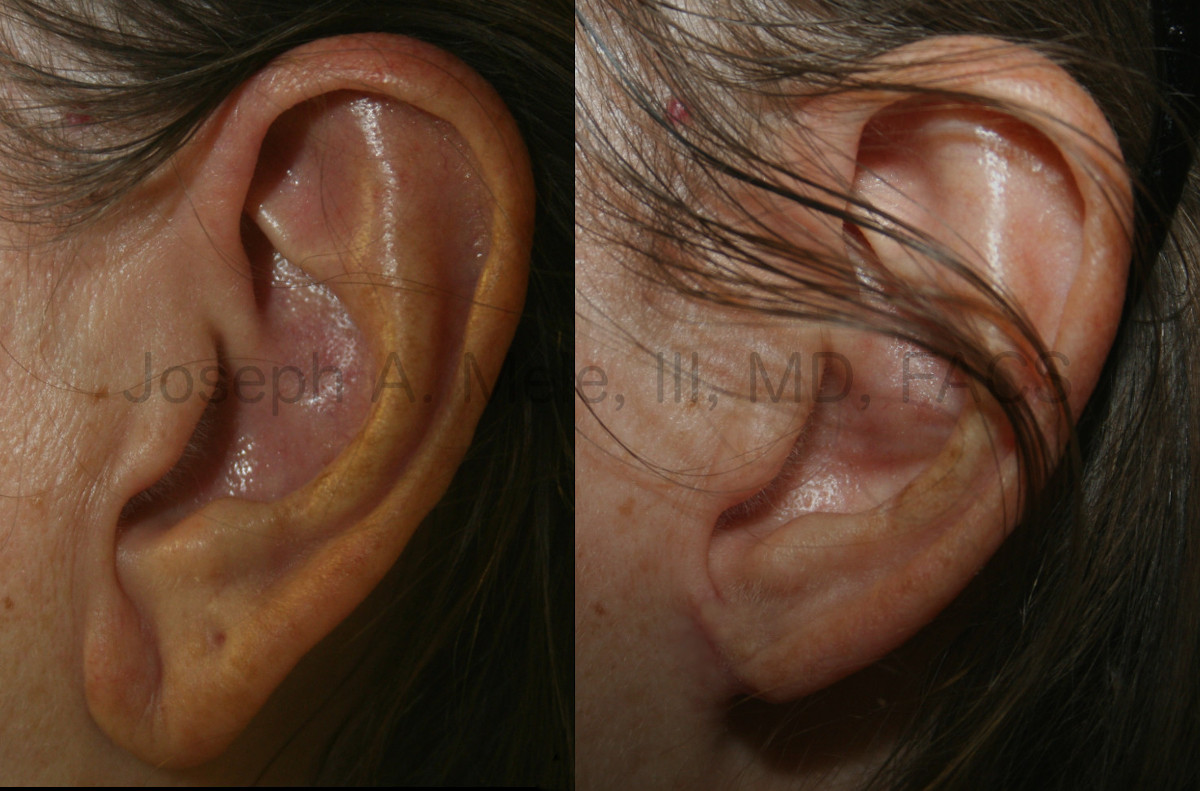 Earlobe Reduction before and after pictures