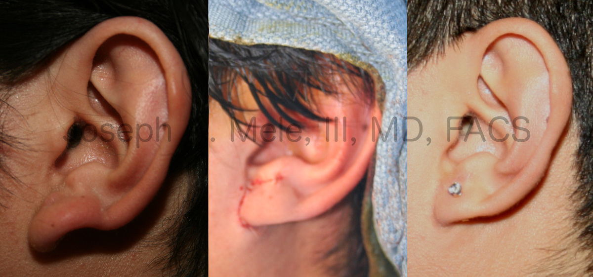 Earlobe Reduction before and after pictures with interoperative view.