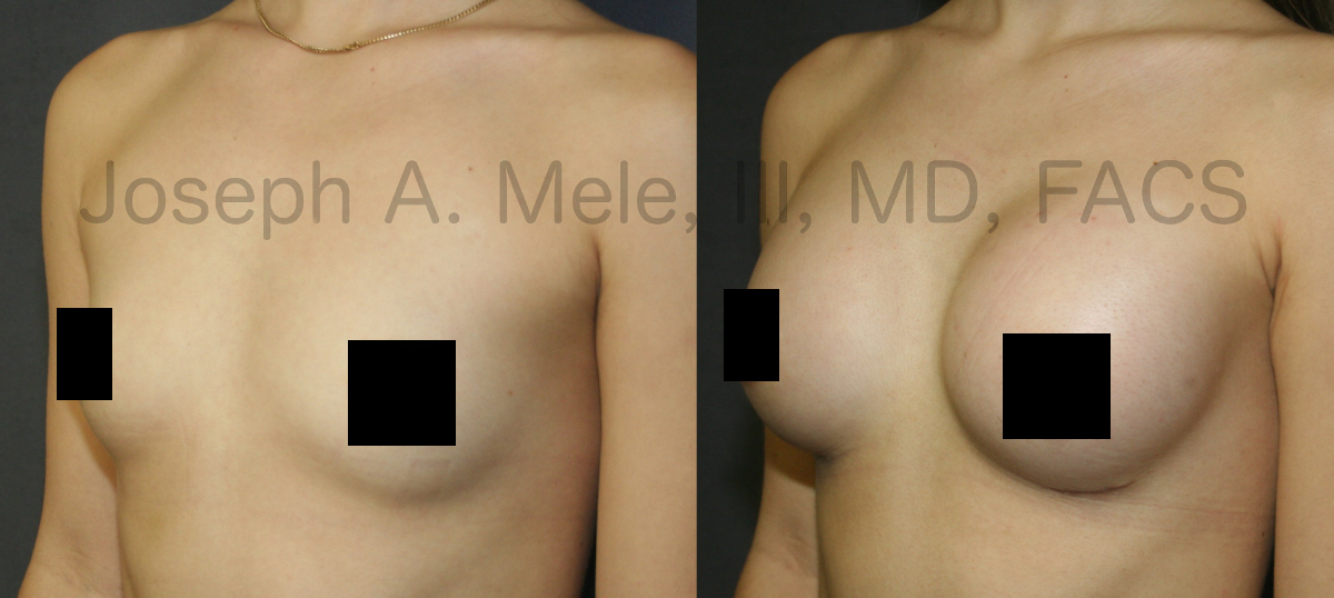 Breast Augmentation before and after pictures with gummy-bear breast implants