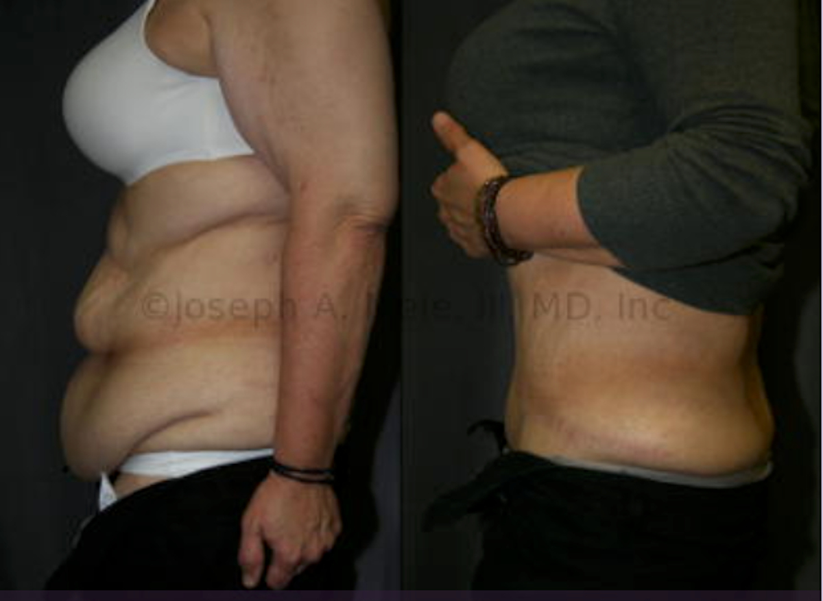 Heavy Weight Tummy Tucks - Abdominoplasty before and after pictures
