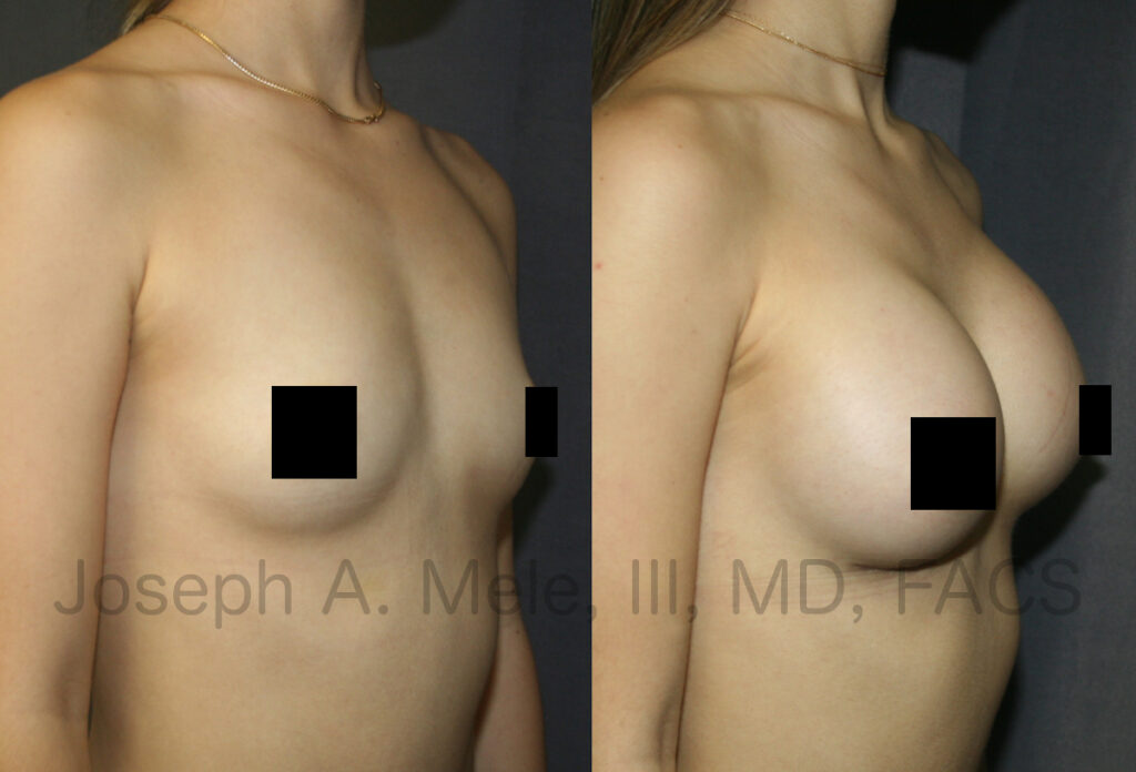 Breast Augmentation Video with before and after pictures