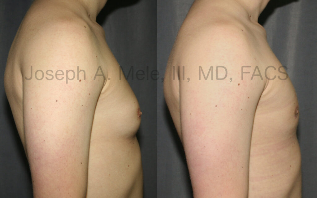 Gynecomastia reduction - side view of before and after male breast reduction
