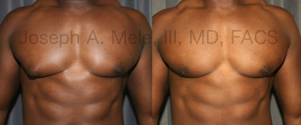 Unilateral (one sided) gynecomastia - corrected with male breast reduction surgery