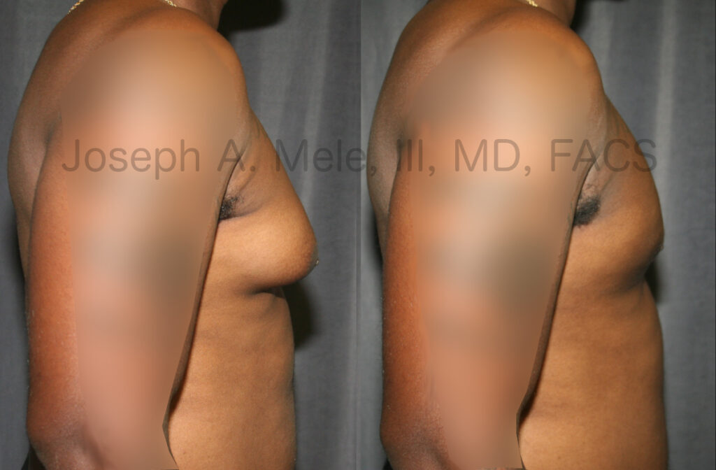 Male breast reduction before and after pictures.
