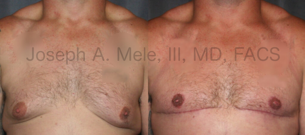 """Male breast reduction with skin resection and """"free-nipple"""" skin grafts"""