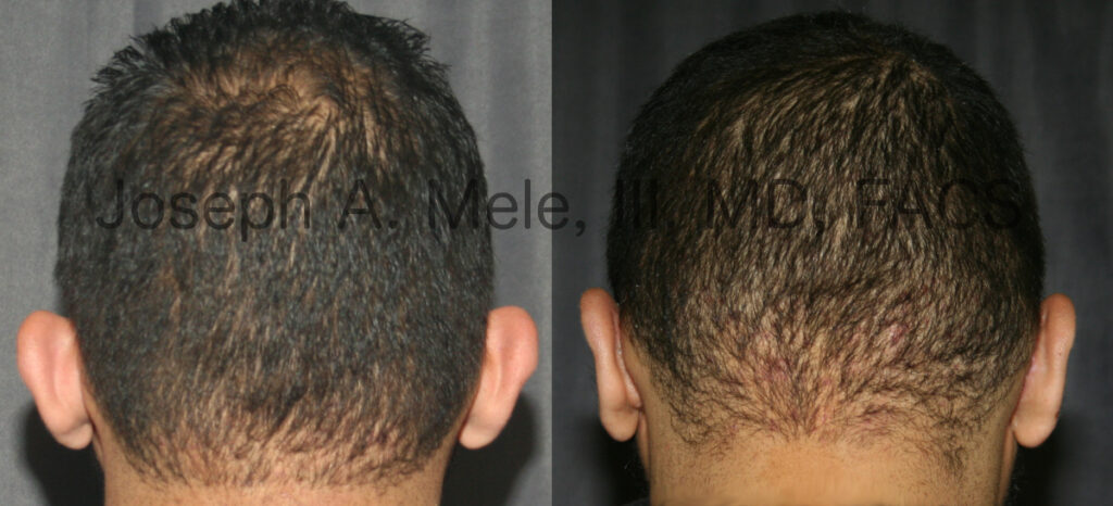 Otoplasty for men before and after pictures. Ear pinning or ears that stick out.
