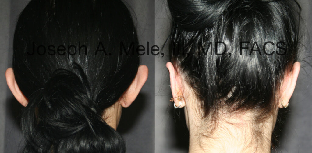 Ear pinning before and after pictures (Otoplasty for prominent ears)