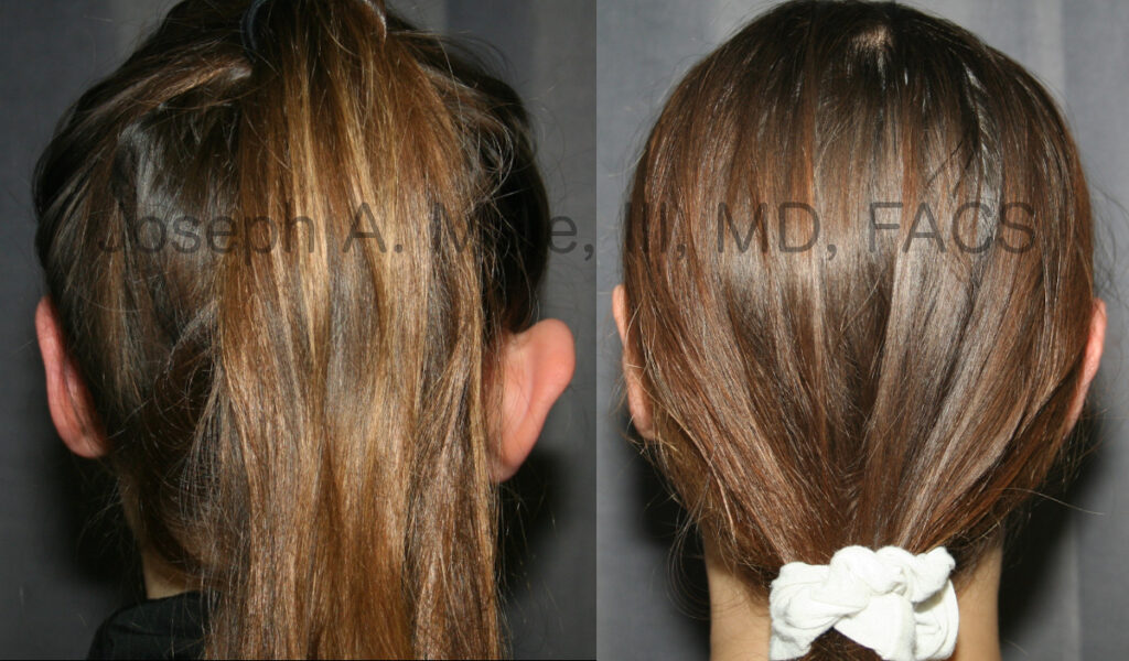 Prominent Ear Reduction with Otoplasty (Ear Pinning) before and after pictures