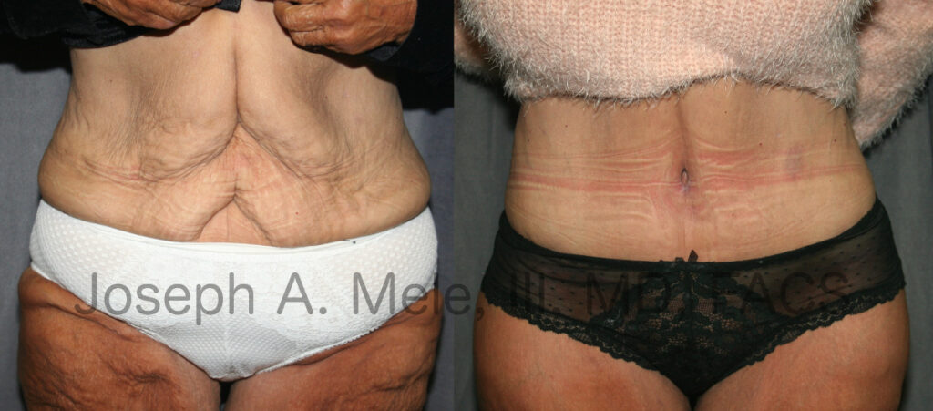 Tummy Tuck after massive weight loss - post bariatric abdominoplasty