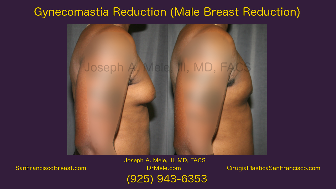 """Male breast reduction for """"man boobs"""" or gynecomastia"""