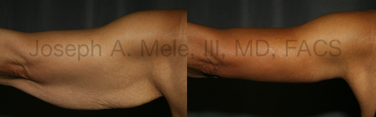 Arm Lift Before and After Pictures (Brachioplasty Photos)