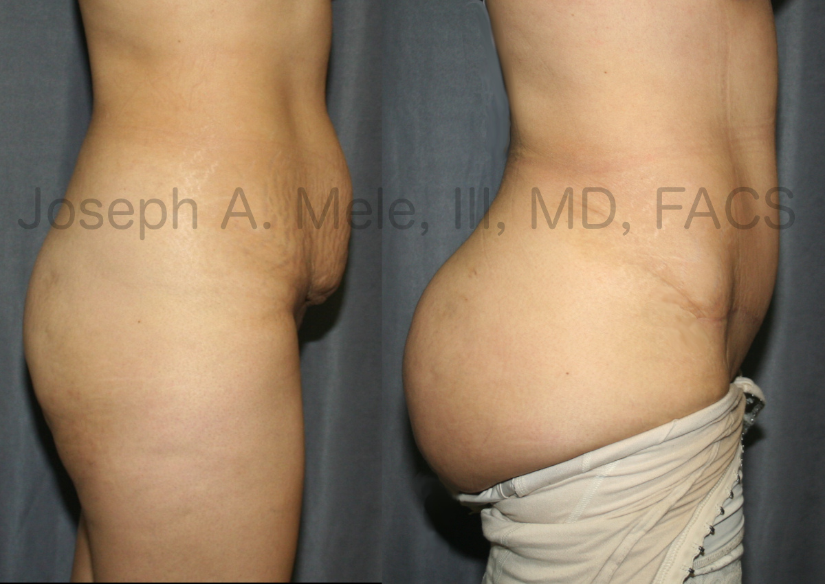 Brazilian Buttocks Lift (BBL) and Abdominoplasty - Before and After Picture - Tummy Tuck and Butt Lift