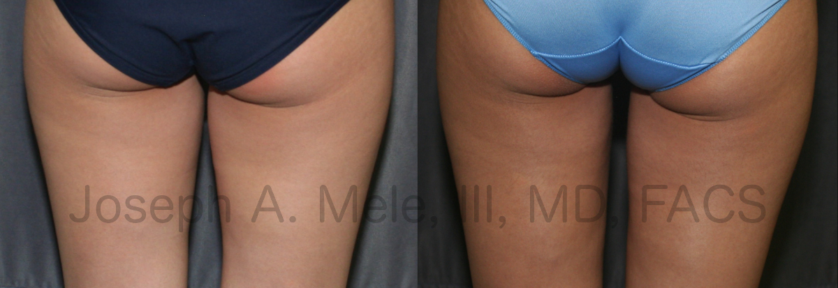 Liposuclpture of the thighs - liposuction before and after pictures
