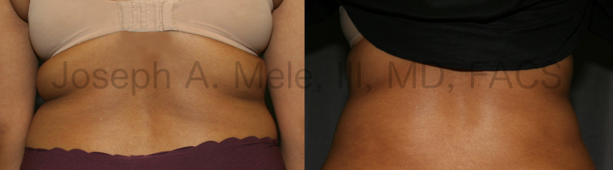 Liposuction of the back, bra folds and love handles - before and after photos