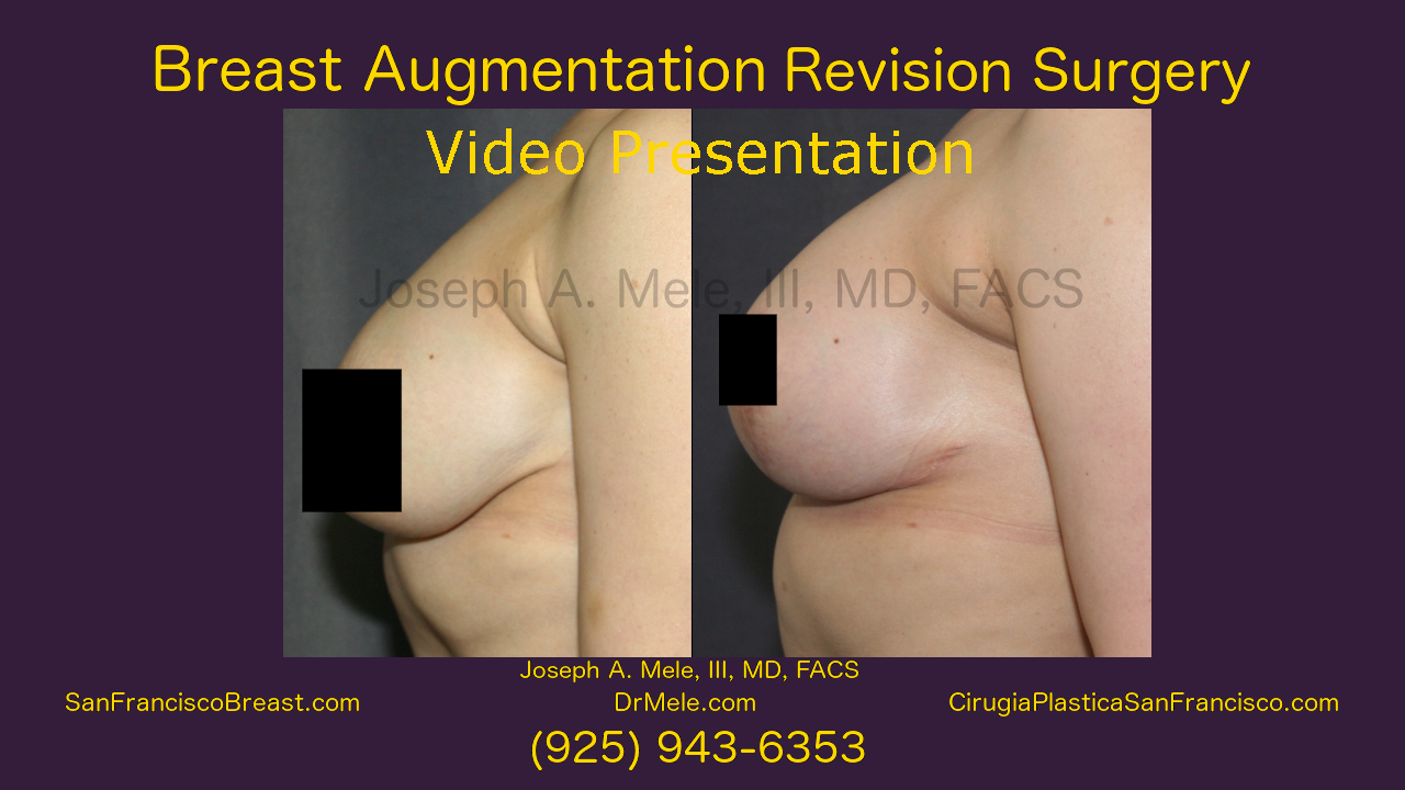 Breast Augmentation Revision Surgery - with Breast Implant revision before and after pictures