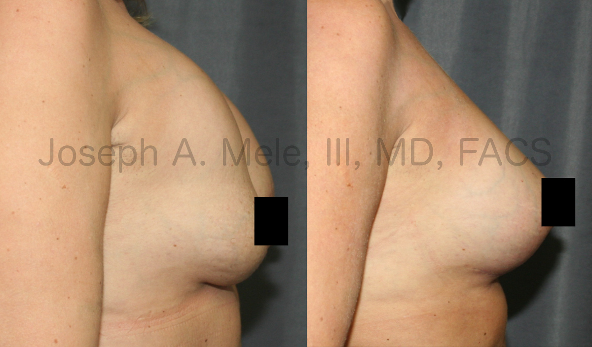 Breast Augmentation Revision Surgery with Capsulectomy and Breast Lift with a Breast Implant