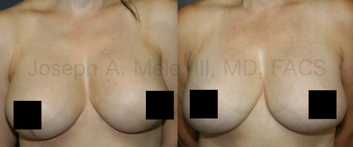 Breast Augmentation Lift Revision Surgery (censored version)