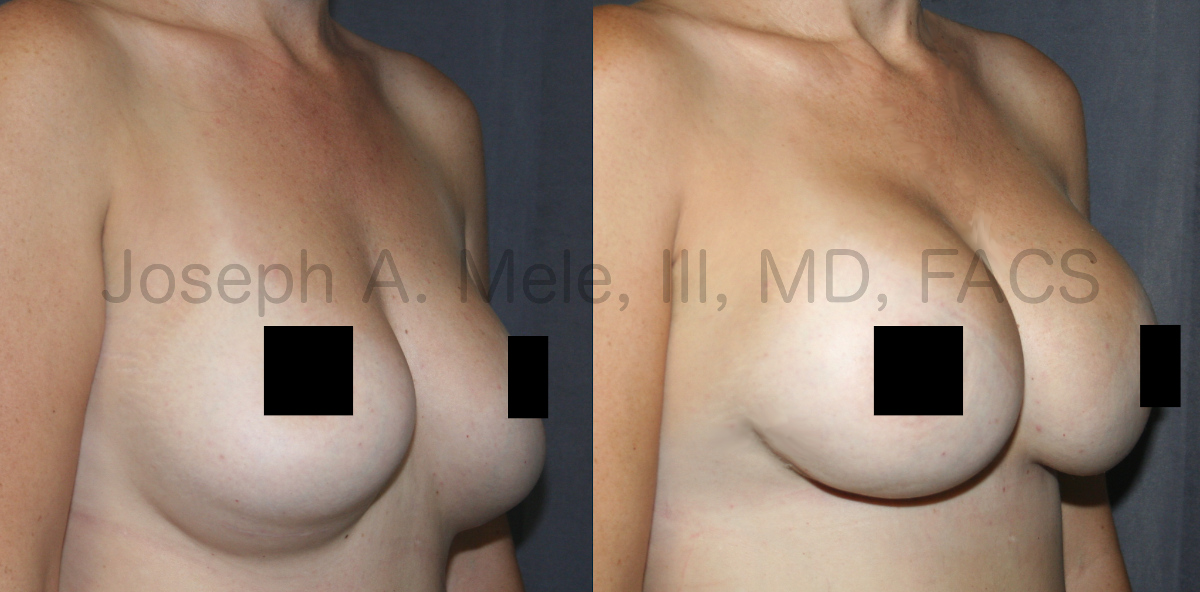 Breast Augmentation Revision Surgery for bottoming out (censored version)