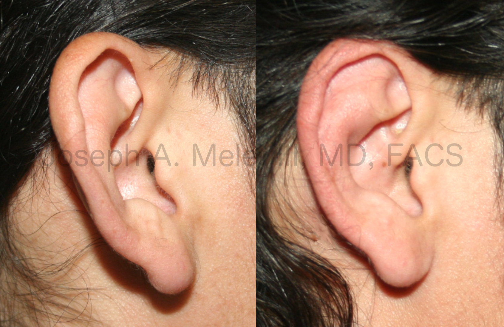 Otoplasty - correction of prominent ears by reducing and rotating the concha.