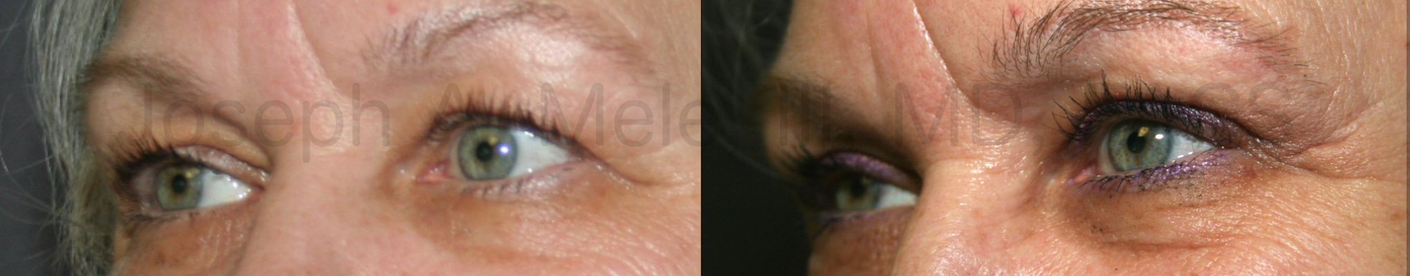 Eyelid Lift before and after pictures (Blepharoplasty)
