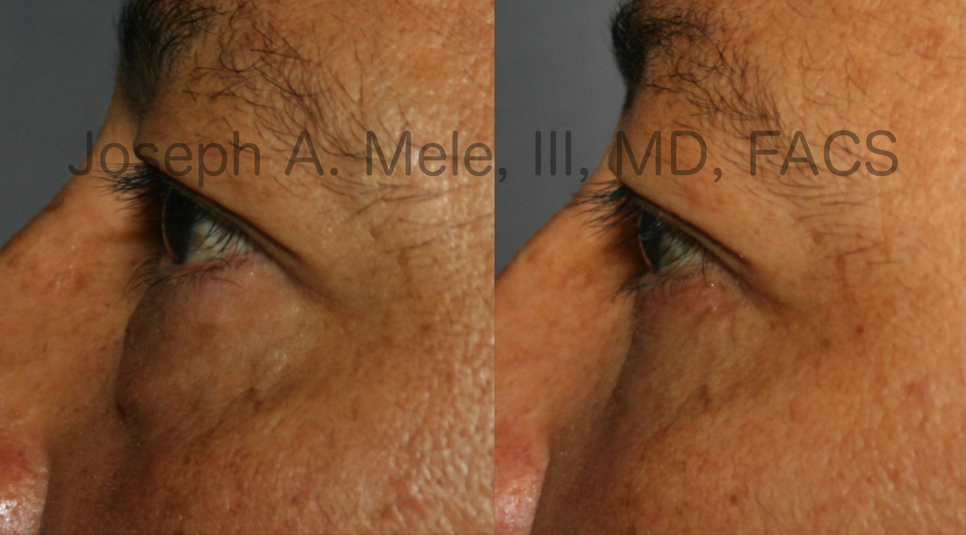 Lower Eyelid Lift before and after pictures (Blepharoplasty)
