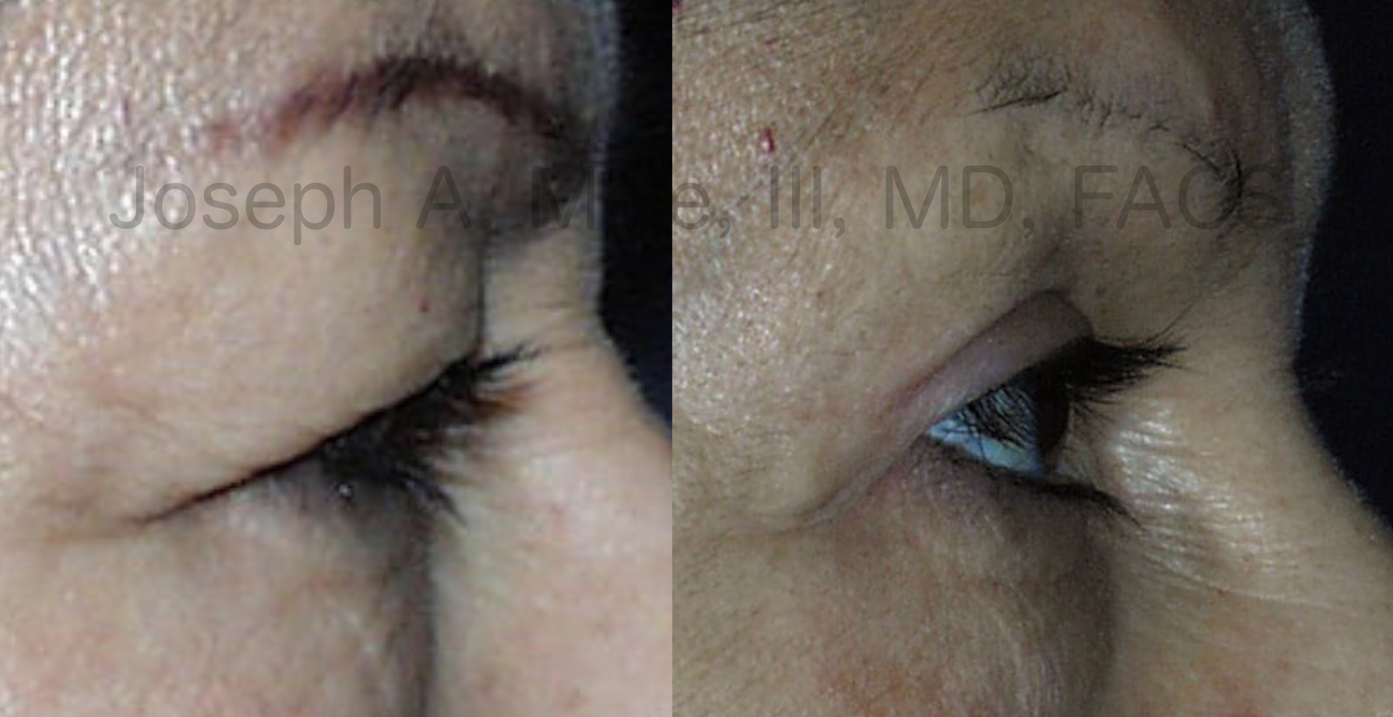 Upper Eyelid Lift before and after pictures (Blepharoplasty)