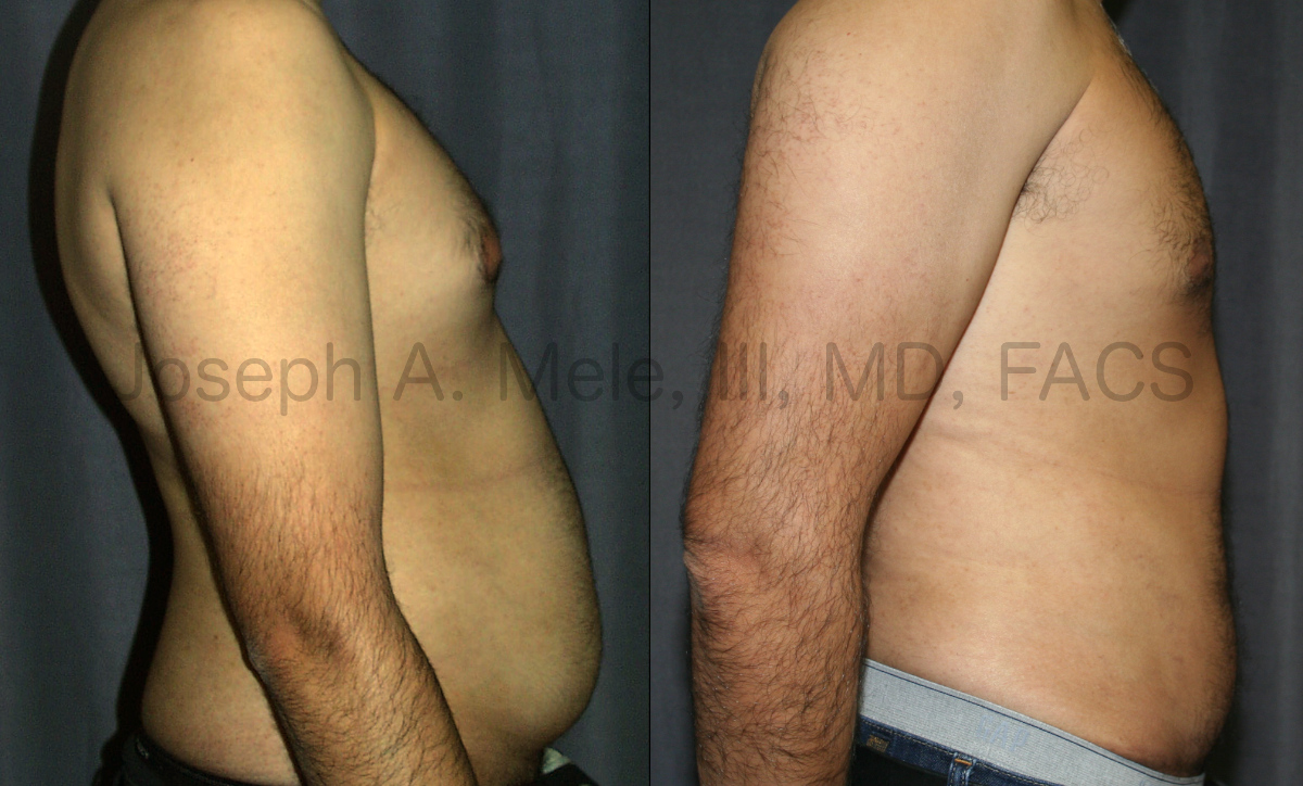 Mini Tummy Tuck Before and After Pictures (Mini Abdominoplasty)