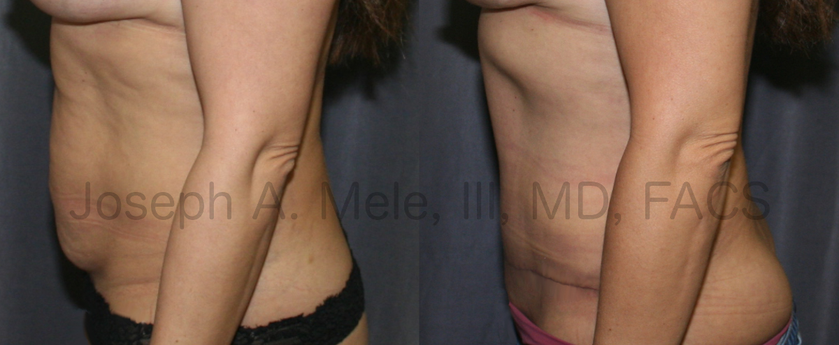Tummy Tuck Before and After Pictures (Abdominoplasty)