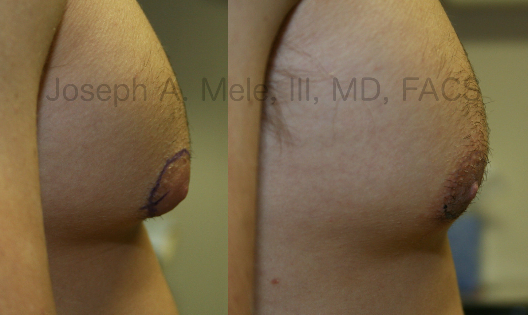 Male Breast Reduction Before and After Pictures - Gynecomastia Before and After Photos