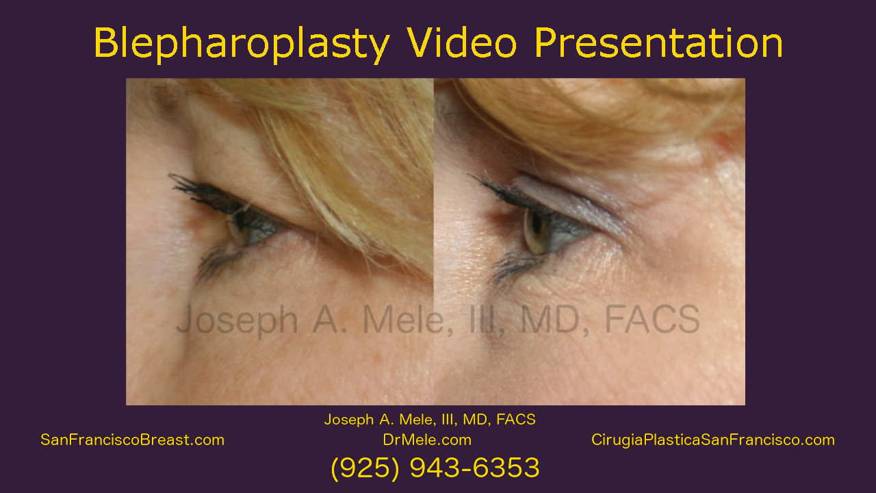Blepharoplasty Video (Eyelid Lifts) with before and after pictures