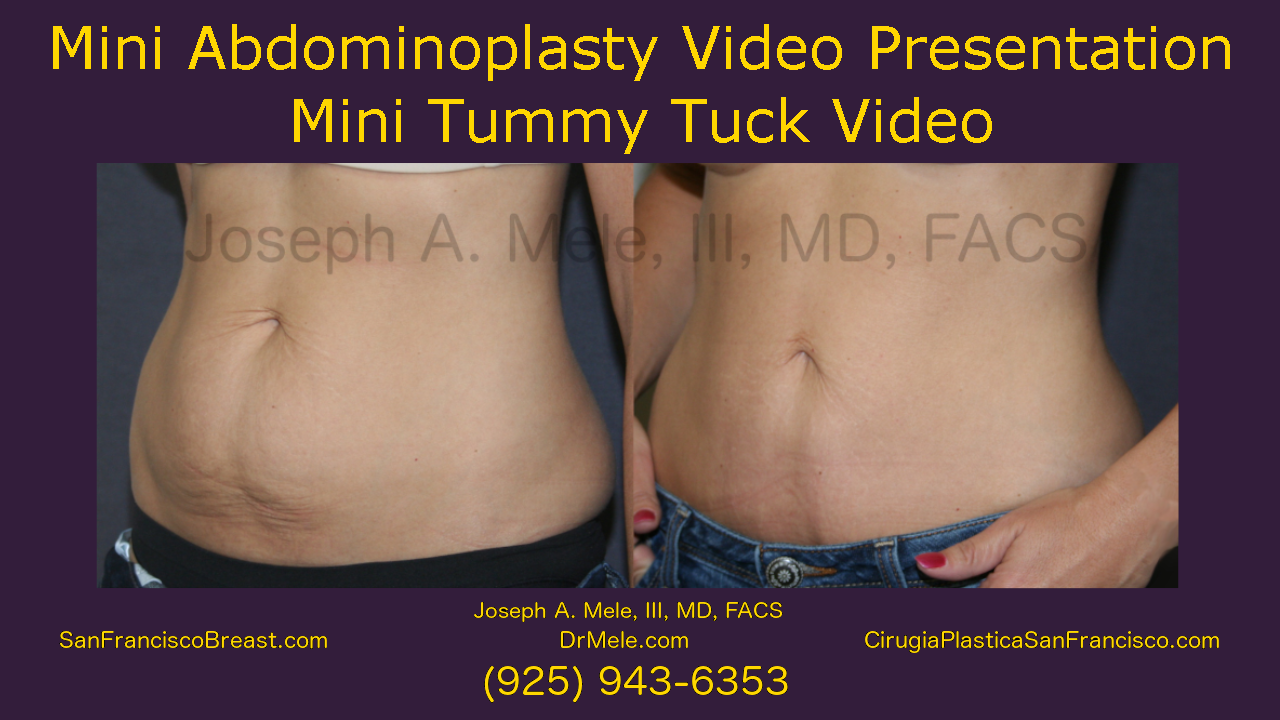 Mini Tummy Tuck before an after pictures Mini Abdominoplasty video presentation